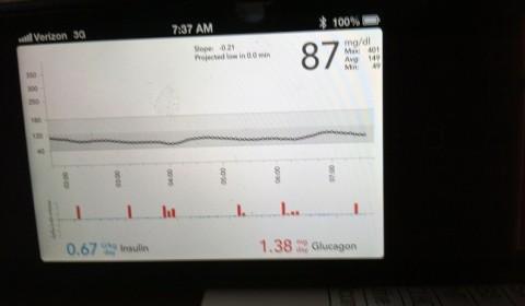 Bionic Pancreas Data Screen fot. healthline.com